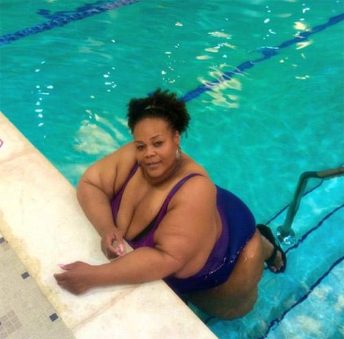 Choáng với bộ da thừa nặng 1 tạ sau khi giảm cân - 2
