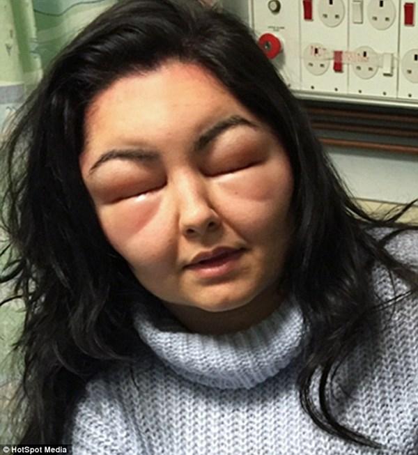 Thiếu nữ bị biến dạng mặt sau khi tự nhuộm tóc - 1