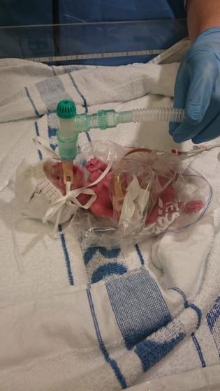 Bé sinh non 0,5 kg sống sót kỳ diệu nhờ chiếc túi nhựa - 1