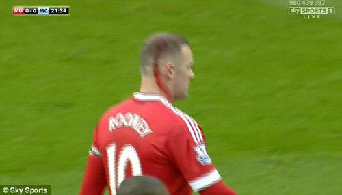 Lao đầu vào răng Kompany, Rooney đổ máu ròng ròng - 2