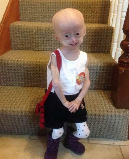 Bé gái 5 tuổi hóa bà lão vì căn bệnh hiếm gặp - 1