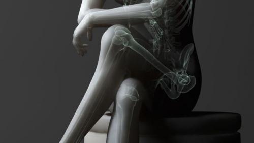 Tác hại khôn lường của việc ngồi vắt chéo chân - 1