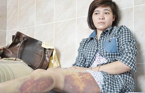 CA Trảng Bàng xin lỗi nữ công nhân bị đánh nhập viện - 1