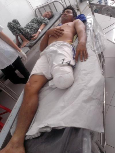 Nam thanh niên đứt lìa cẳng chân vì va phải cầu sắt - 1