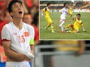 Bóng đá - Mua bảo hiểm cho cầu thủ