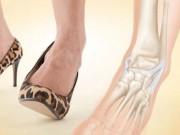 Sức khỏe đời sống - Viêm khớp, lồi đĩa đệm do đi giầy cao gót quá nhiều
