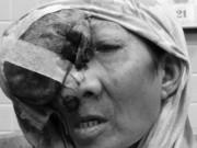 Sức khỏe đời sống - Phẫu thuật lấy khối u khổng lồ lan từ mũi đến sọ não