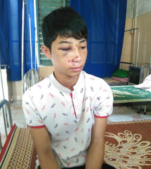 CA xã đánh học sinh lớp 10 nhập viện vì nhầm là trộm - 1
