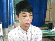 Tin tức trong ngày - CA xã đánh học sinh lớp 10 nhập viện vì nhầm là trộm