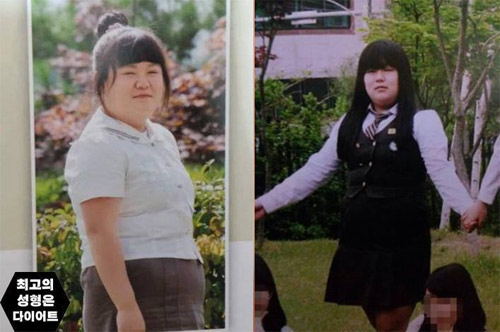 Thiếu nữ béo phì xinh đẹp như hot girl nhờ giảm cân - 2