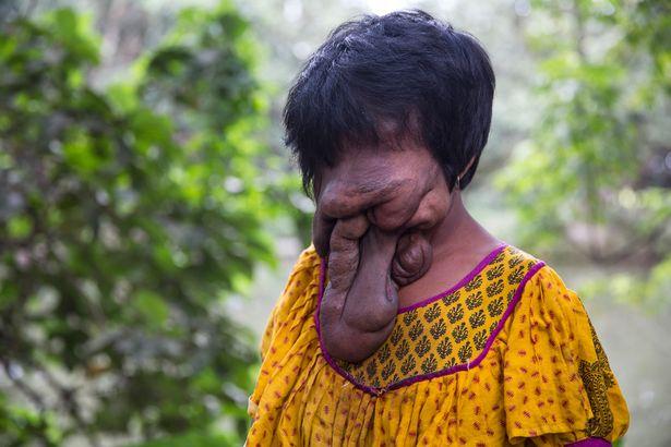 Cô gái 21 tuổi không có mặt vì mắc bệnh hiếm gặp - 1
