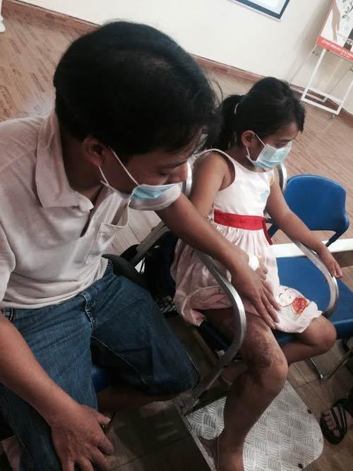 Phẫu thuật thành công bé gái mắc bệnh hiếm dị dạng tĩnh mạch - 1