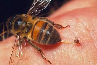 Bị ong đốt 41 mũi, bé sáu tuổi suy gan, thận - 1