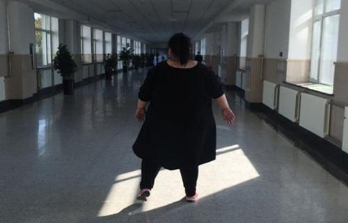Cô gái béo nhất TQ cắt bớt dạ dày để giảm cân - 2