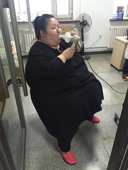Cô gái béo nhất TQ cắt bớt dạ dày để giảm cân - 5