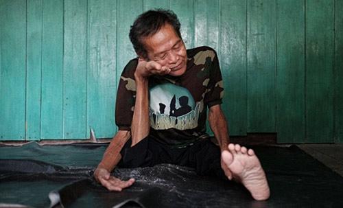 """Cụ ông """"không xương"""" ở Indonesia - 2"""