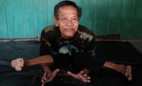 """Cụ ông """"không xương"""" ở Indonesia - 3"""