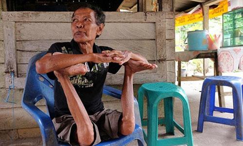 """Cụ ông """"không xương"""" ở Indonesia - 4"""