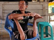 """Clip Đặc Sắc - Cụ ông """"không xương"""" ở Indonesia"""