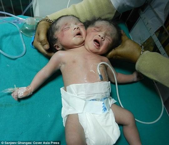 Người dân đổ xô đến bệnh viện xem bé gái 2 đầu - 1