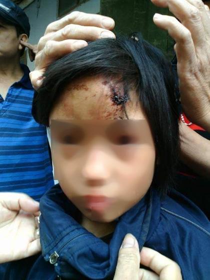 Kỷ luật sư trụ trì vụ bé gái thương tích trong chùa - 1