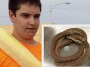 Bạn trẻ - Cuộc sống - Thanh niên yêu động vật ngồi yên để rắn độc cắn đến chết
