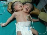 Sức khỏe đời sống - Người dân đổ xô đến bệnh viện xem bé gái 2 đầu