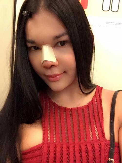 Cô gái Thái xinh bất ngờ sau 4 lần sửa mũi - 4