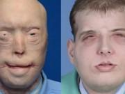 Sức khỏe đời sống - Ca ghép mặt lớn nhất thế giới cho lính cứu hỏa Mỹ