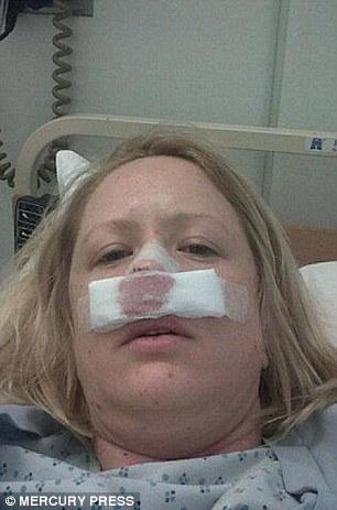 Cô gái suýt mất mũi vì bị... bọ ăn thịt người xâm nhập - 2