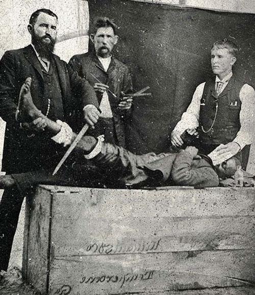 Hình ảnh chân thực và rùng rợn của y học thế kỷ 19 - 1