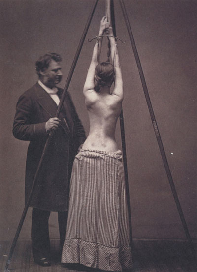 Hình ảnh chân thực và rùng rợn của y học thế kỷ 19 - 6