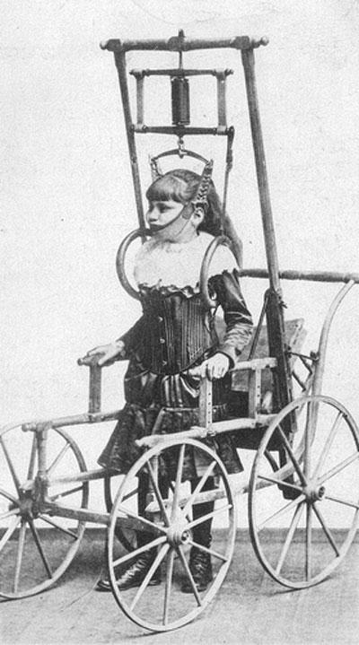 Hình ảnh chân thực và rùng rợn của y học thế kỷ 19 - 8