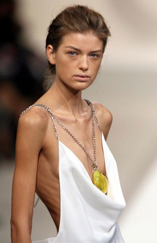 Chuyện đời buồn của người mẫu chết thảm vì giảm cân - 4