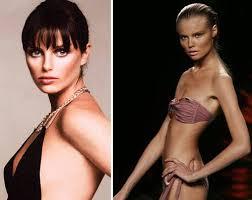 Chuyện đời buồn của người mẫu chết thảm vì giảm cân - 3