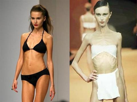 Chuyện đời buồn của người mẫu chết thảm vì giảm cân - 5