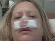 Sức khỏe đời sống - Cô gái suýt mất mũi vì bị... bọ ăn thịt người xâm nhập