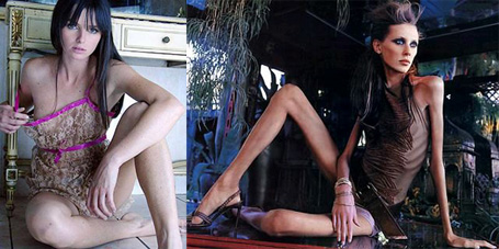 Chuyện đời buồn của người mẫu chết thảm vì giảm cân - 2