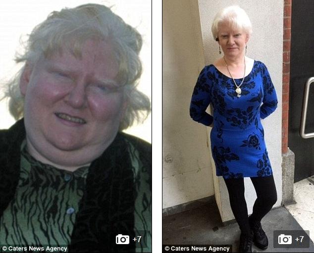 Bà mẹ giảm gần 100kg nhờ tập thái cực quyền và buộc dạ dày - 1