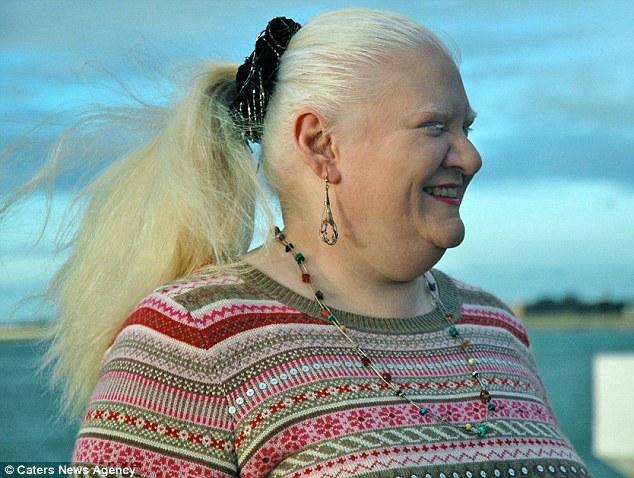 Bà mẹ giảm gần 100kg nhờ tập thái cực quyền và buộc dạ dày - 2