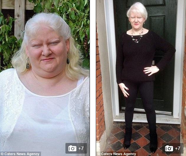 Bà mẹ giảm gần 100kg nhờ tập thái cực quyền và buộc dạ dày - 3