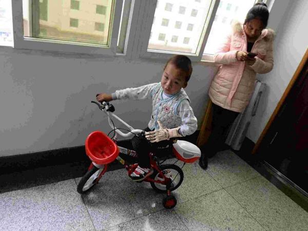 Bé trai 5 tuổi được ghép tay giả có thể cử động - 1