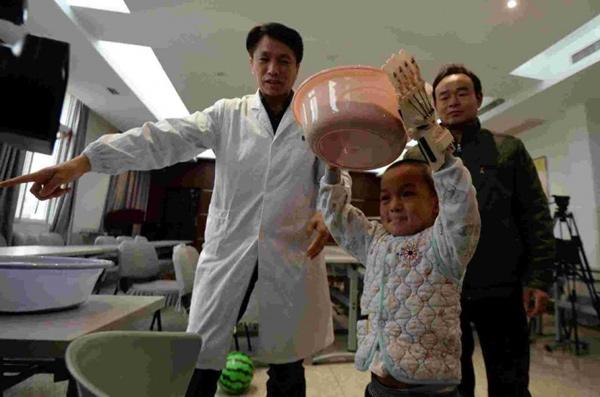 Bé trai 5 tuổi được ghép tay giả có thể cử động - 2