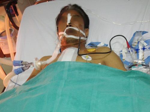 Xe ôm bị cướp đâm dao xuyên gáy xuống tim - 2