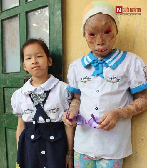 Xót xa 2 bé mắc bệnh vảy cá da khô nứt toàn thân - 4