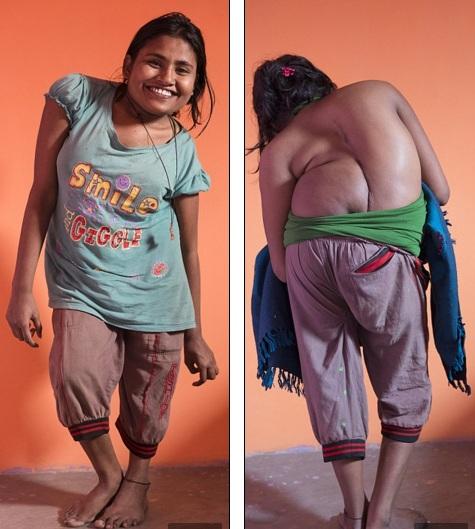 Cô gái trẻ bị bệnh lạ khiến cột sống vặn như lò xo - 1