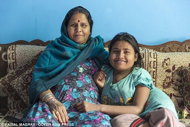 Cô gái trẻ bị bệnh lạ khiến cột sống vặn như lò xo - 3