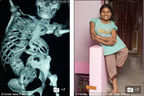 Cô gái trẻ bị bệnh lạ khiến cột sống vặn như lò xo - 2
