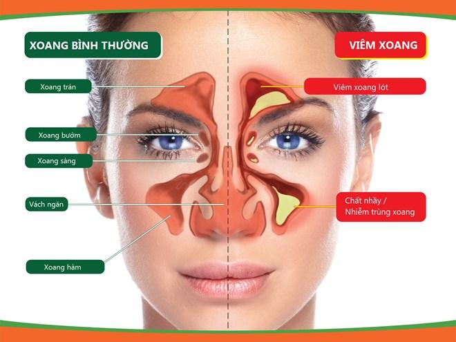 Viêm mũi, xoang dị ứng dễ tái phát khi chuyển mùa