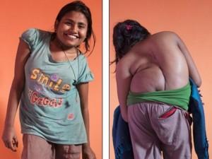 Bạn trẻ - Cuộc sống - Cô gái trẻ bị bệnh lạ khiến cột sống vặn như lò xo